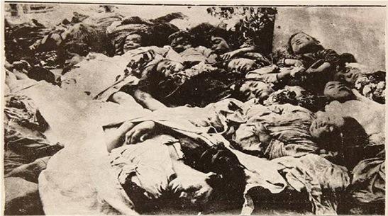 LA PESTE DE VIRUELA DE 1921 EN VALLENAR