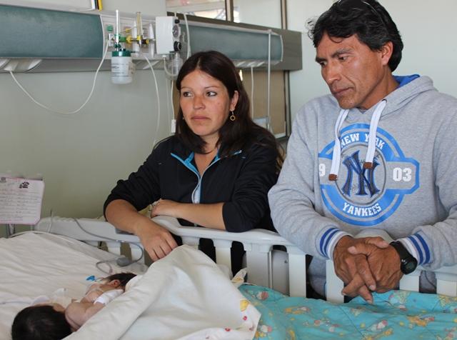 Siamesas Anaís y Amanda fallecen en Vallenar