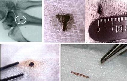 Implantes extraterrestres en seres humanos